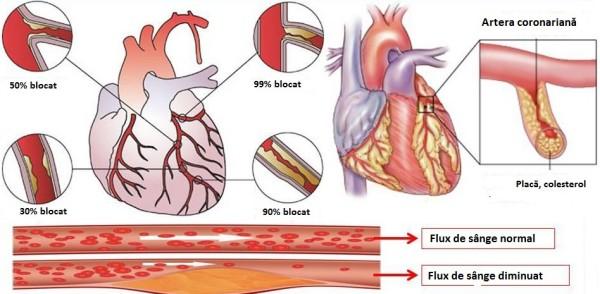 Cardiopatia ischemică, Foto: files.abcdacardiologia.webnode.com