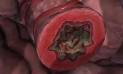 Inflamația bronhiilor