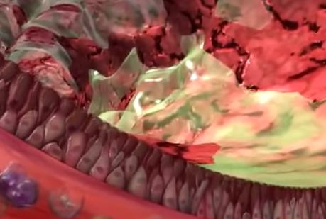 Producția de mucus în bronhiile inflamate