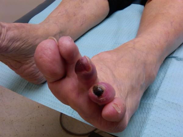 Gangrena diabetică, Foto: lighthousefootandankle.com