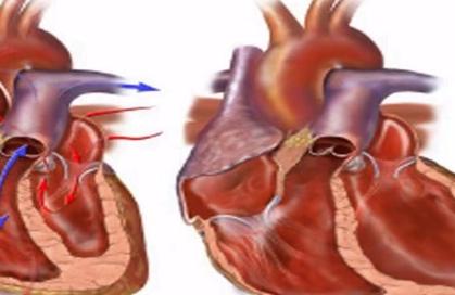 Insuficiența cardiacă congestivă