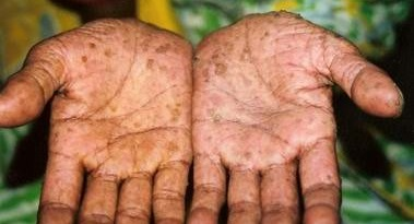Intoxicația cu arsenic, Foto: diseaseclick.com