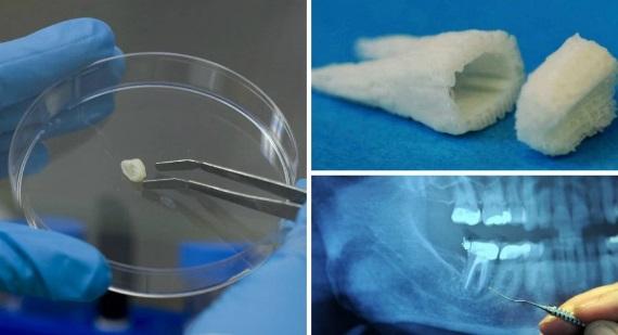 Tehnologia de regenerare a dinților, Foto: nativewarriors.co