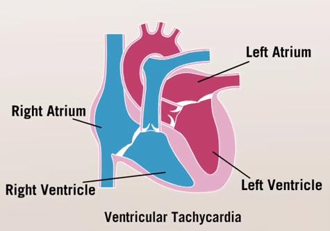 Tahicardia ventriculară