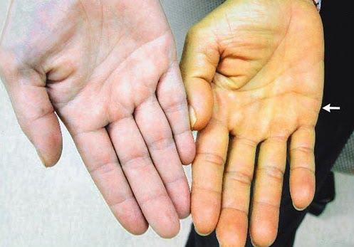 Icter mecanic, Foto: prezi.com
