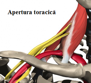 Sindromul aperturii toracice SAT, Foto: burtchiropractic.com