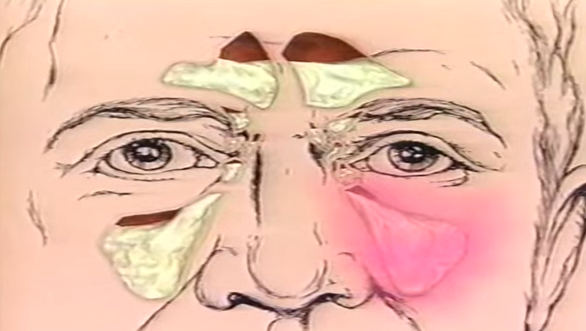 Sinuzita - Zone congestionate