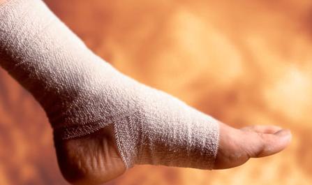 Glezna accidentată bandajată, Foto: georgiamiddleton.weebly.com