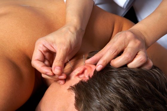 Acupunctura, Foto: hypnosisdenvercolorado.files.wordpress.com