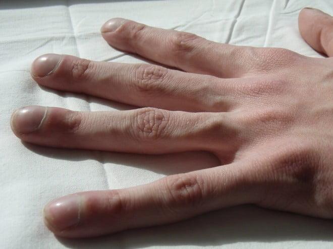 Cianoza degetelor - semn al hipoxiei, Foto: dxline.info