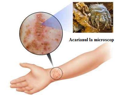 Scabia, observarea mostrei de piele la microscop, Foto: medical-home-remedies.com