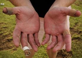 Vezicule la degete din cauza uneltelor de grădinărit, Foto: medside.ru