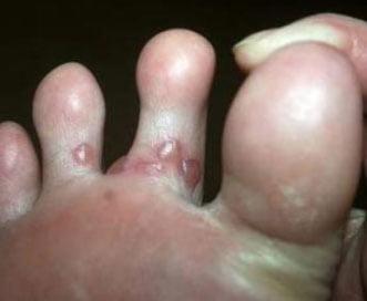 Vezicule la degetele de pa picior, Foto: hvatit-bolet.ru