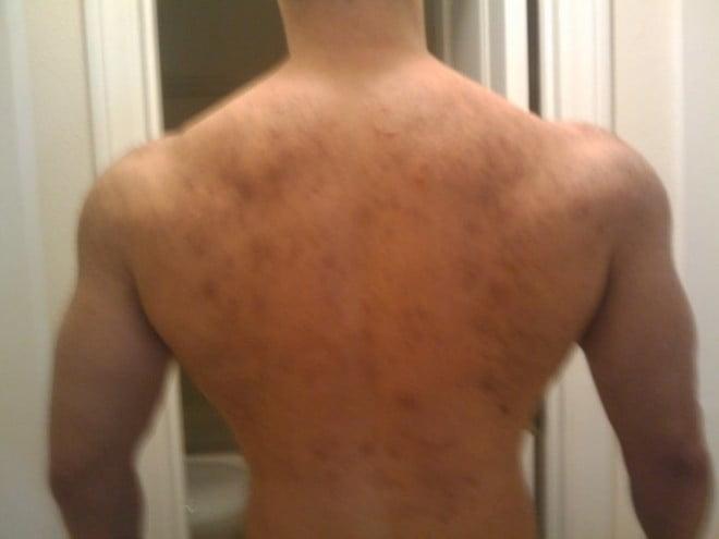 Steroizii pot accentua apariția acneei pe spate, față și gât, Foto: leanmuscleproject.com