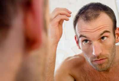 Steroizii produc căderea părului, Foto: anabolic-shop.eu