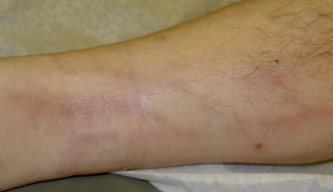 Tromboflebita - boală cardiovasculară, Foto: pixshark.com