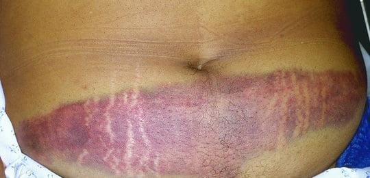 Leziuni în zona abdominală în urma unui accident, Foto: emsworld.com