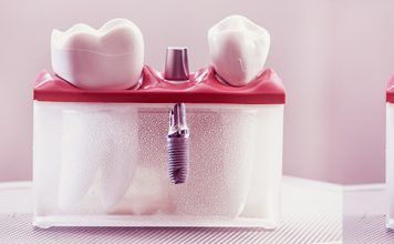 Velvet Dental Implant Dentar