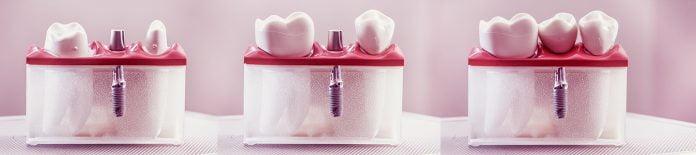 Velvet Dental Implant Dentar