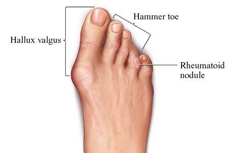 Afecțiuni ale piciorului, Foto: big-toe-twitching.bentoelmild.com