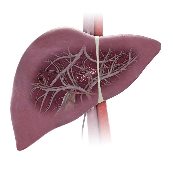 Afecţiuni hepatice parenchimatoase, Foto: healthtap.com