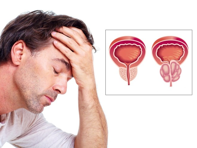 Afecțiuni ale prostatei, Foto: rak-prostaty.com