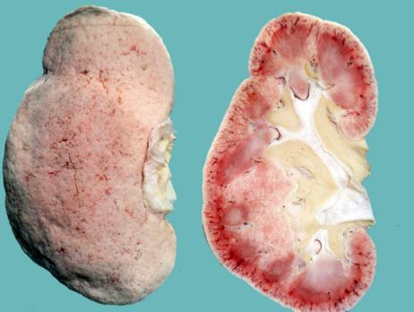Afecțiuni renale în hipertensiunea arterială, nefroangioscleroza benignă, Foto: studyblue.com