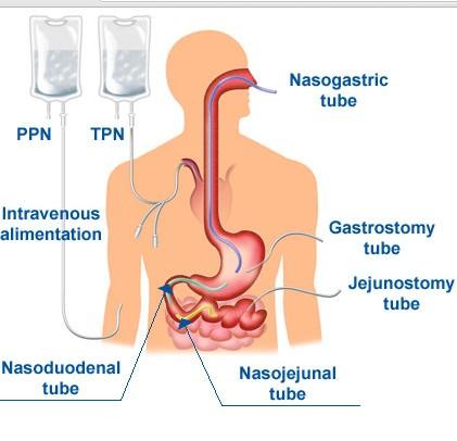 Alimentarea intravenoasă a bolnavului, Foto: medbullets.com