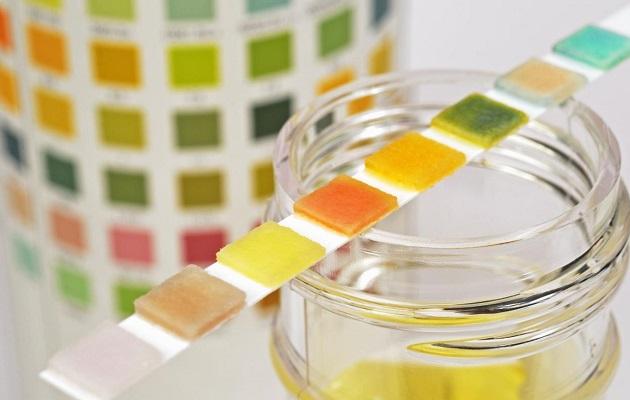 Analiza de urină, Foto: moirody.ru