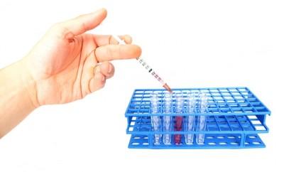 Analize medicale pentru stabilirea diagnosticului când se suspectează anumite boli de ficat, Foto: pd4pic.com