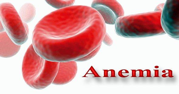 Anemia, scăderea numărului de eritrocite din sânge sau himinuarea conținutului de hemoglobină din eritrocite, Foto: myhealthblogs.com
