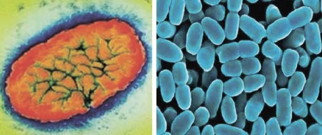 Bacteria Bordetella pertussis, Foto: medzdrav.com.ua