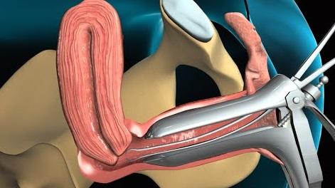 Biopsia funcțională a endometrului