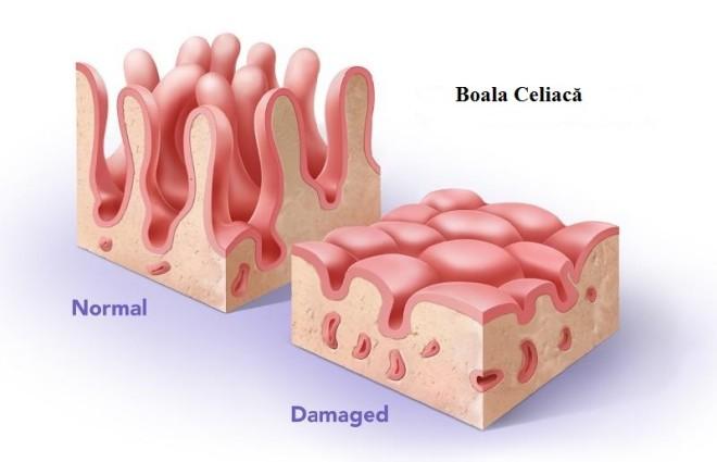 Boala Celiacă, o afecțiune cronică a intestinului, Foto: archive.constantcontact.com