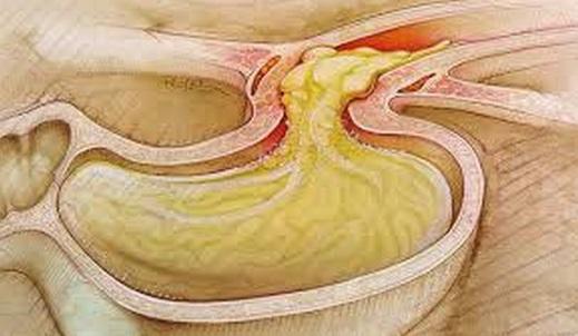 Reflux gastro-esofagian, Foto: answers.yahoo.com