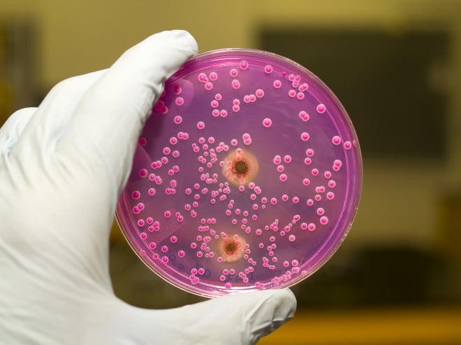 Candida albicans, Foto: pixshark.com