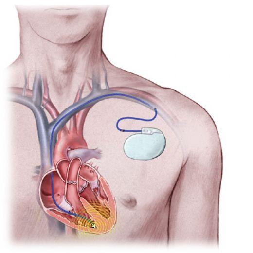 Cardita reumatismală, Foto: healthheartdiseases.blogspot.com