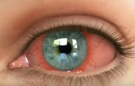 Conjunctivită, înroșirea ochilor, lăcrimare excesivă