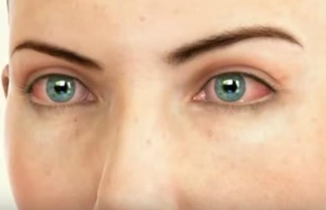 Conjunctivită, boală inflamatorie și contagioasă a ochilor