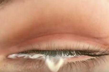Conjunctivită, secreție de lichid alb-gălbui din ochi, lipirea pleoapelor