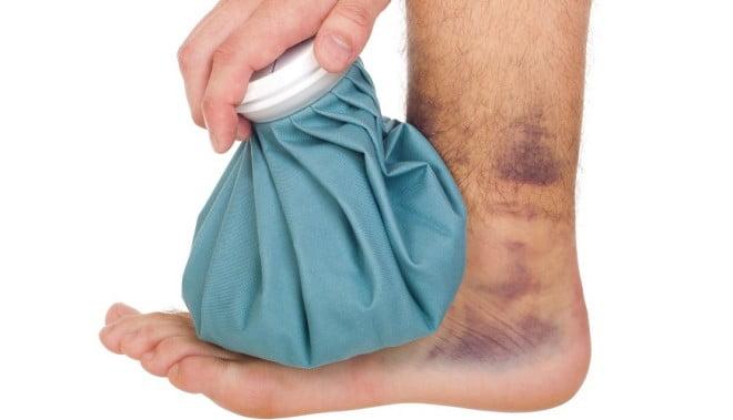 Contuzii la picior și gambă, Foto: medbooking.com
