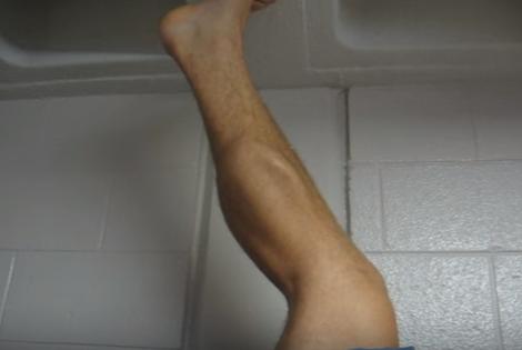 Crampe musculare la gambe