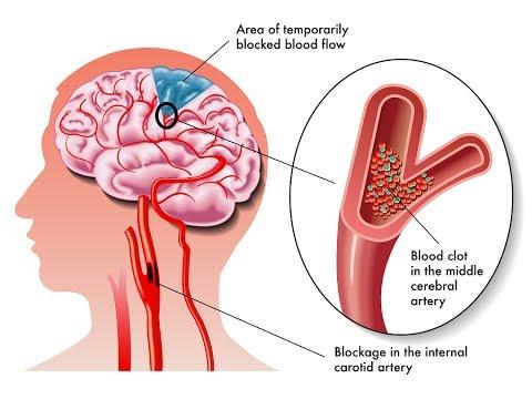 Demența vasculară produce tulburări cognitive din cauza reducerii fluxului de sânge la creier, Foto: youtube.com