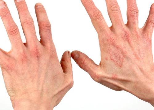 Dermatită, Foto: thralbesbaper.xpg.uol.com.b