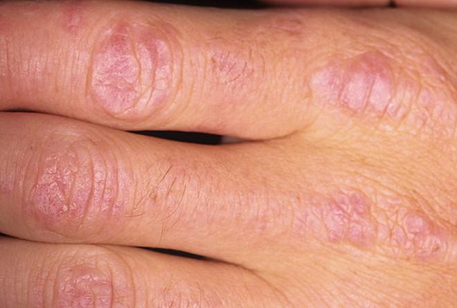 Dermatomiozita idiopatică, Foto: fast-images.ru