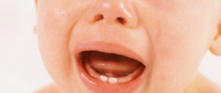 Dinți de lapte la copii, Foto: sante.lefigaro.fr
