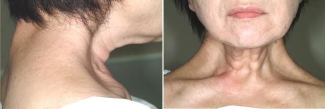 Distonia musculară la pacient, Foto: alfa-img.com
