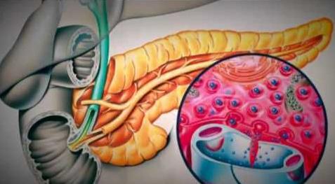 Enzimele din pancreas ajută digestia