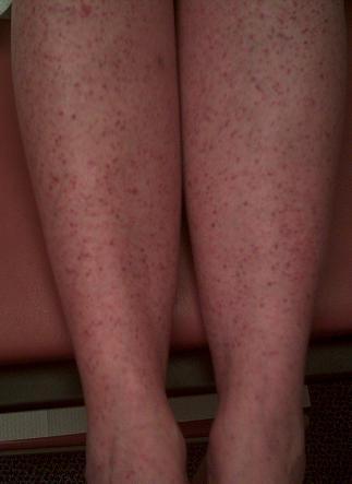 Erupții pe piele la o pacientă cu febra Q, cu infecția cu bacteria Coxiella burnetii, Foto: rxpharma.xyz