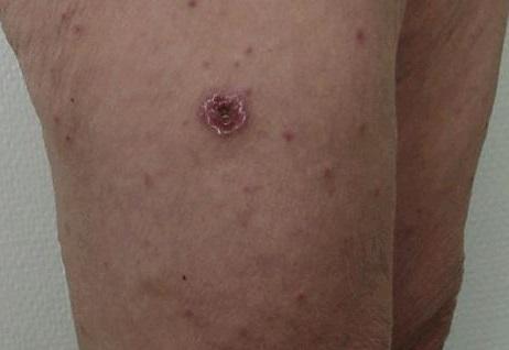 Febra de Marsilia, mușcătura de căpusă ce conține bacteria Rhipicephalus sanguineus, Foto: medicalplanet.su